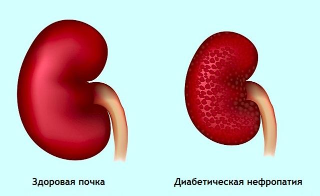 Что такое пиелонефрит почек при сахарном диабете