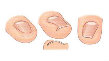 Эффективное средство от грибка на ногтях рук
